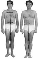 Mans kropp före och efter Rolfing