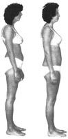 Kvinnas kropp före och efter Rolfing